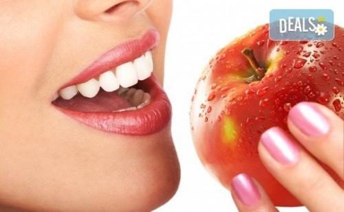 Холивудска Усмивка! Една Процедура - Избелване на Зъби с Висококачествената Система на Opalescense Boost При д-р Иван Пулин